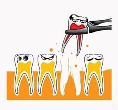 Солист Удаление зуба