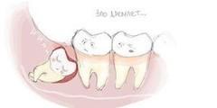 МкДент Удаление зуба