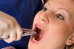 fit way Удаление зуба
