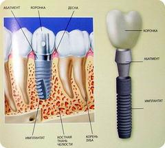 Леон-м Металлокерамическая коронка на имплантате