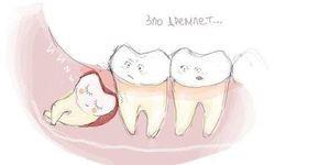МкДент Удаление зуба - фото 1