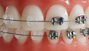 Скульптура Чарли Ортопедическая стоматология - фото 1